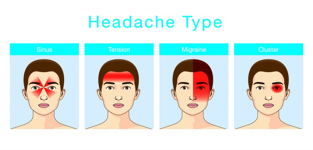 The four main types of headaches and where the pain resonates.