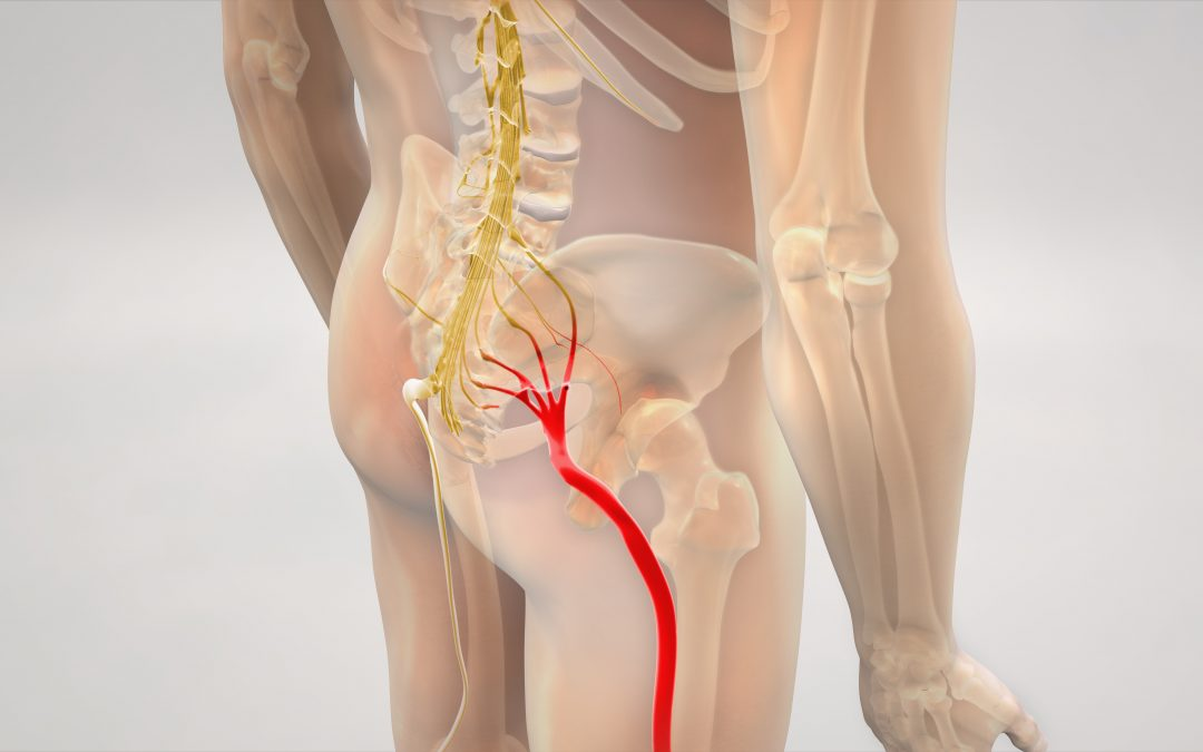 How to Treat Sciatica with Massage